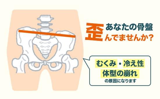骨盤の歪みはむくみ・冷え性・体型の崩れなどを引き起こす原因となります。